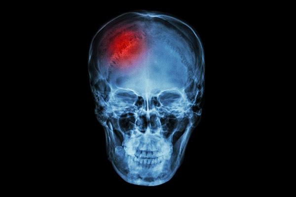 brain injuries adult